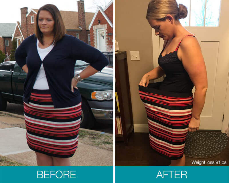 Obalon Balloon System | Dallas-Fort Worth Weight Loss Surgeon
